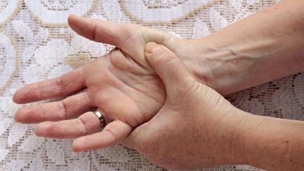 Natural Remedies For Arthritis In Hands Uk