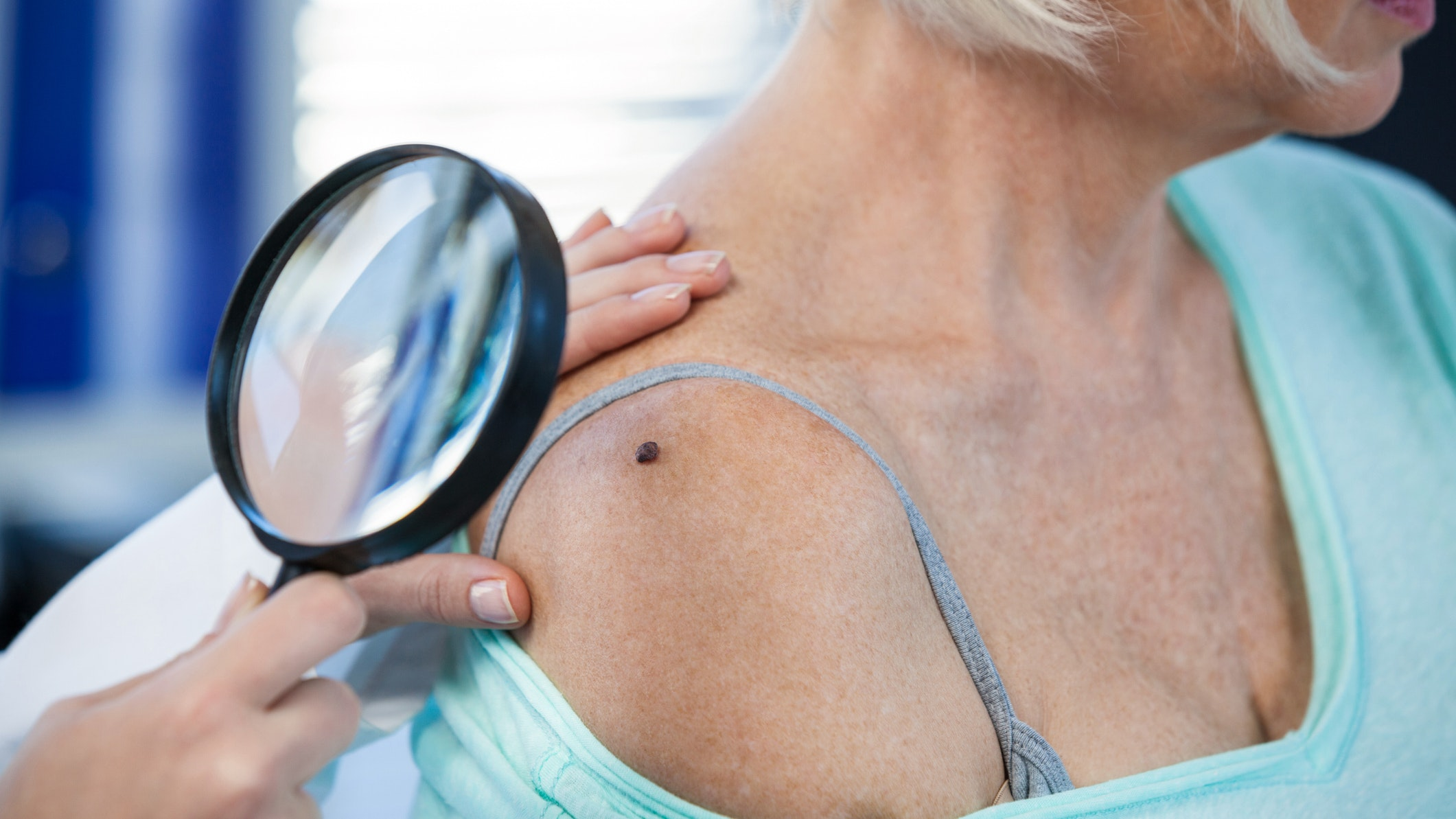 Do You Know The Skin Cancer Warning Signs