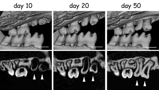 X-ray of mouse mouth with implanted teeth growing