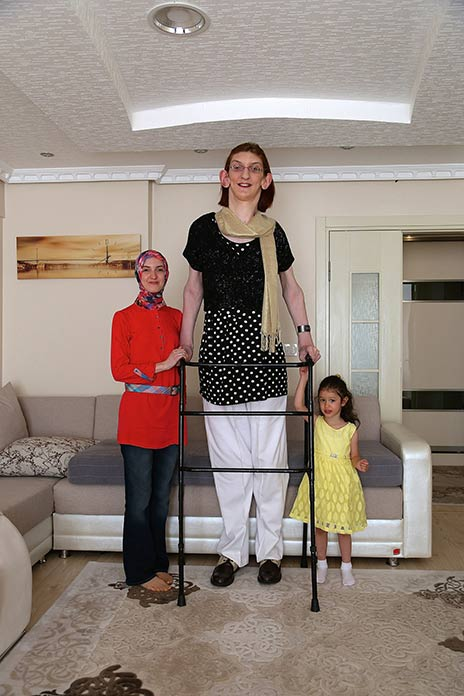 world's tallest teen girl is almost 7 foot tall - bt, Skeleton