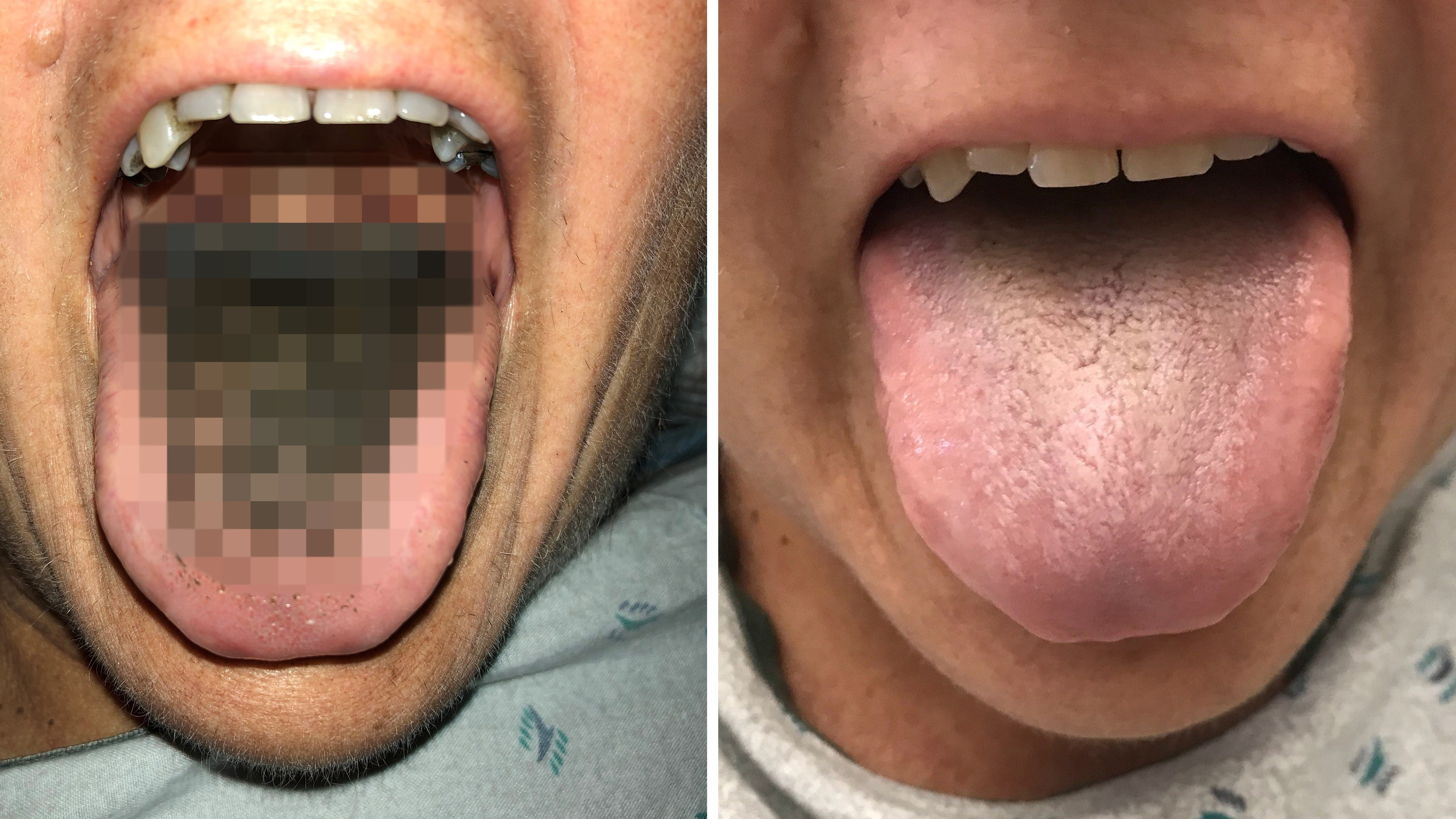 Woman suffers from 'black hairy tongue' after vehicle accident