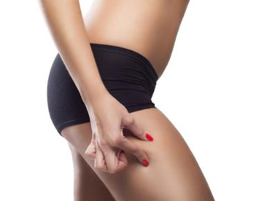 A woman checks for signs of cellulite