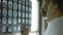 AI could spot Alzheimer's in MRI scans up to a decade before symptoms show