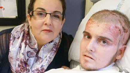 Burns victim well enough to watch beloved Spurs