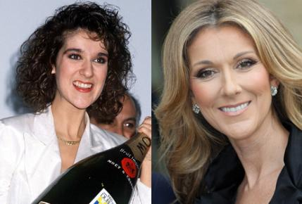 Celebrity teeth: before and after smile makeovers | BT | 429 x 290 jpeg 21kB