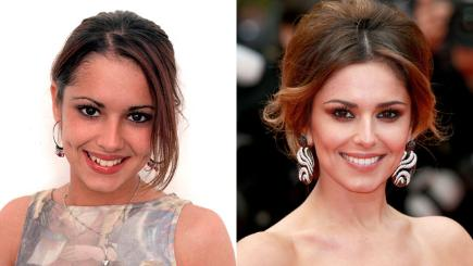 Celebrity Teeth Before And After Smile Makeovers Bt