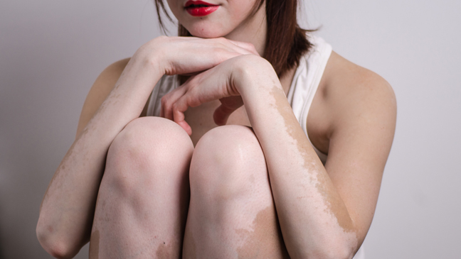 What Is Vitiligo What You Need To Know About The Skin Condition Bt