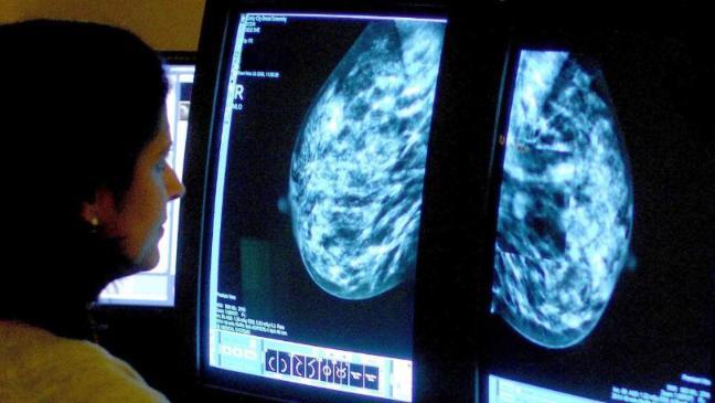Breast density treatment