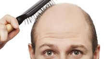There are plenty of ways you can deal with male baldness