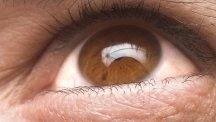 Glaucoma - 6 things you need to know about the eye condition that could make you go blind