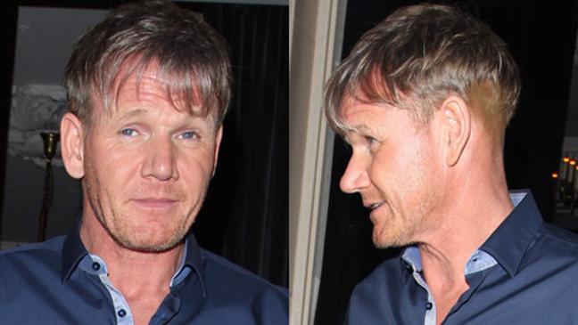 gordon s new hair sparks transplant rumours bt