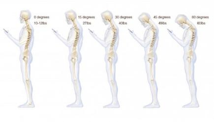 Is texting damaging your back?