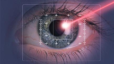 5 laser eye surgery myths debunked