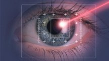 Laser eye surgery - would you?