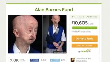 Money is pouring in to the fund for pensioner Alan Barnes