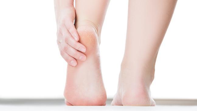 Cracked heels: how to soften your feet