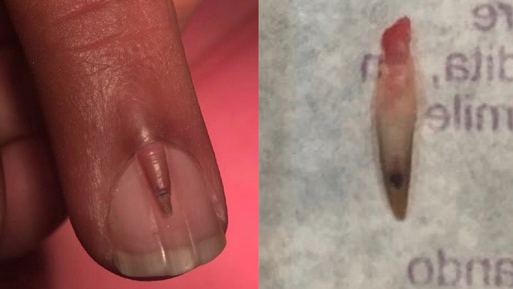This man had an extra nail growing out of his middle finger | BT