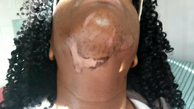 Woman Scarred For Life By Botched Laser Treatment Bt
