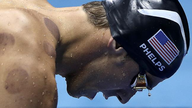 Here's why so many Olympic athletes have little red marks on them