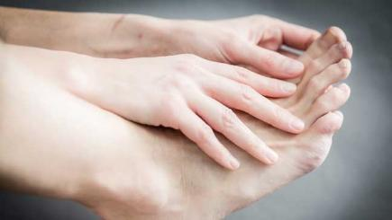 What is plantar fasciitis? 5 things you need to know about the foot condition