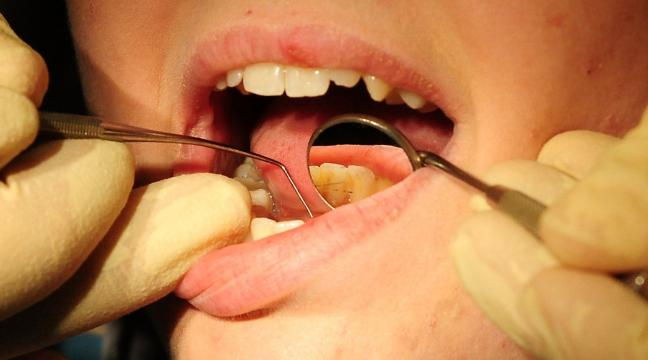 Whitening your teeth using a diy kit you could be putting yourself whitening your teeth using a diy kit you could be putting yourself in danger solutioingenieria Image collections
