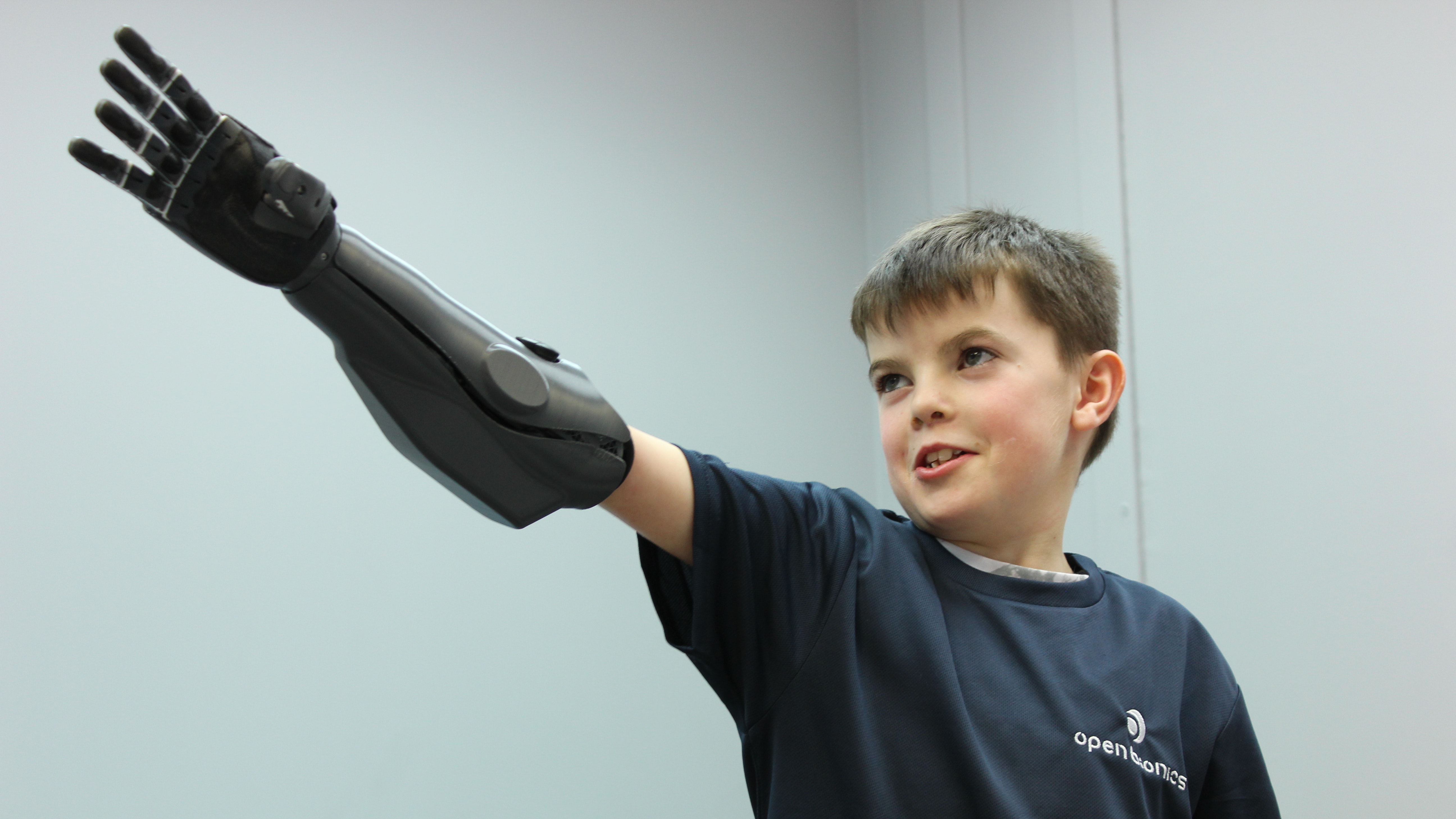 World's first 3D-printed arms for amputees created by Open