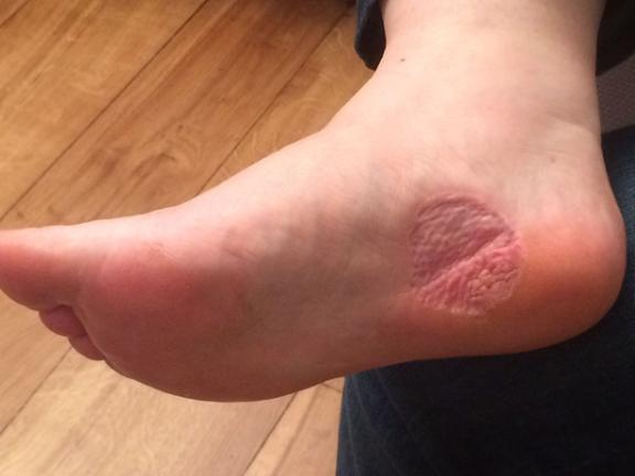 Woman Discovered Verruca On Her Foot Was Actually Skin Cancer Bt