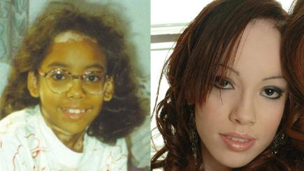 Real life story: My black skin turned white