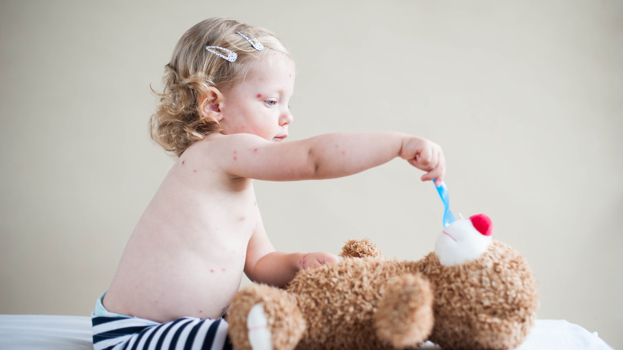 What is my child's rash? How to identify 10 rashes and tell